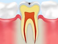 虫歯になりかけている歯