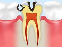 中期の虫歯